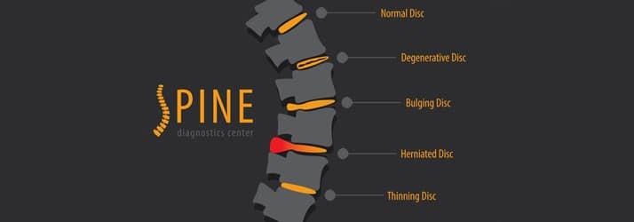 Chiropractic Costa Mesa CA Specific Corrective Process